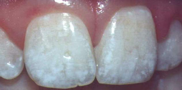 Picture of fluorosed teeth